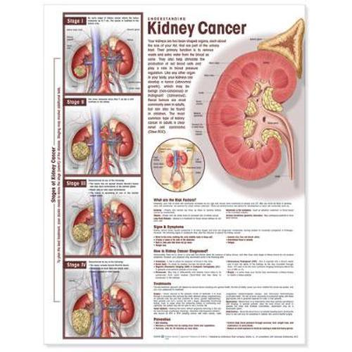 NEW-Understanding-Kidney-Cancer-Anatomical-Chart-by-Acc-Hardcover-Book-English